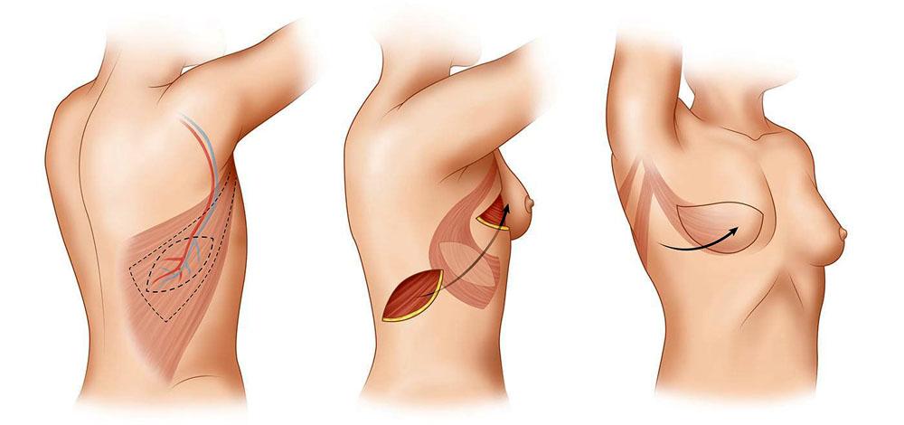 как подтянуть грудь женщине