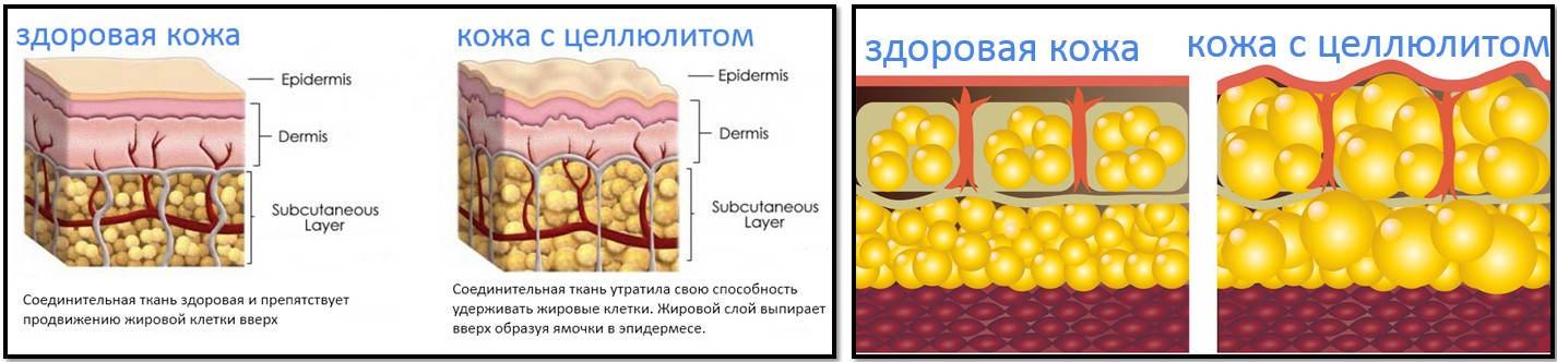 medovyy-massazh-ot-tsellyulita-tehnika-vypolneniya