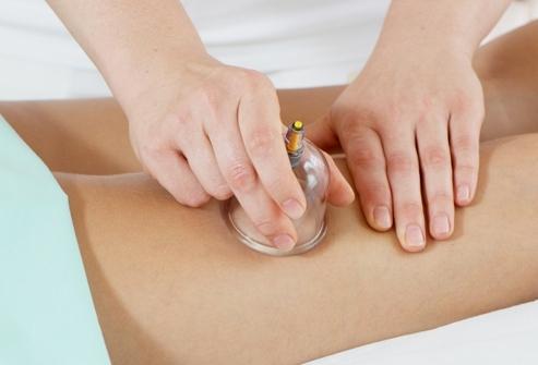 вакуумные банки для массажа от целлюлита